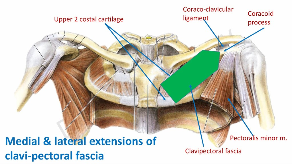 Coracoid process Coraco-clavicular ligament Upp...
