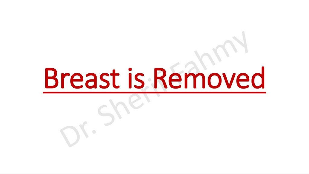 Breast is Removed