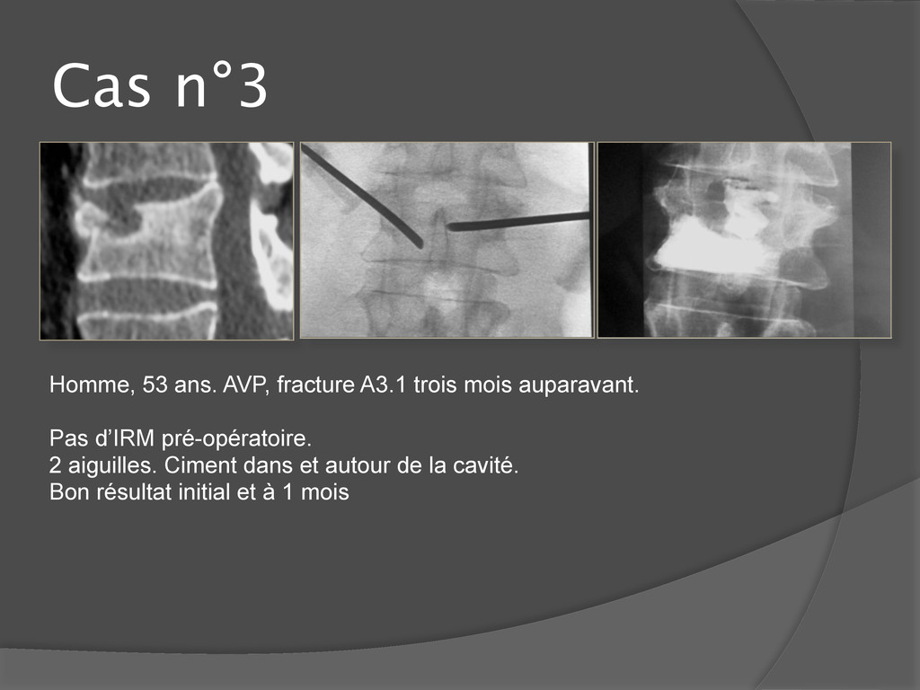 Cas n°3 Homme, 53 ans. AVP, fracture A3.1 trois...