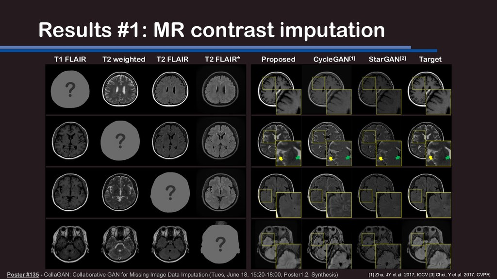 Results #1: MR contrast imputation T1 FLAIR T2 ...