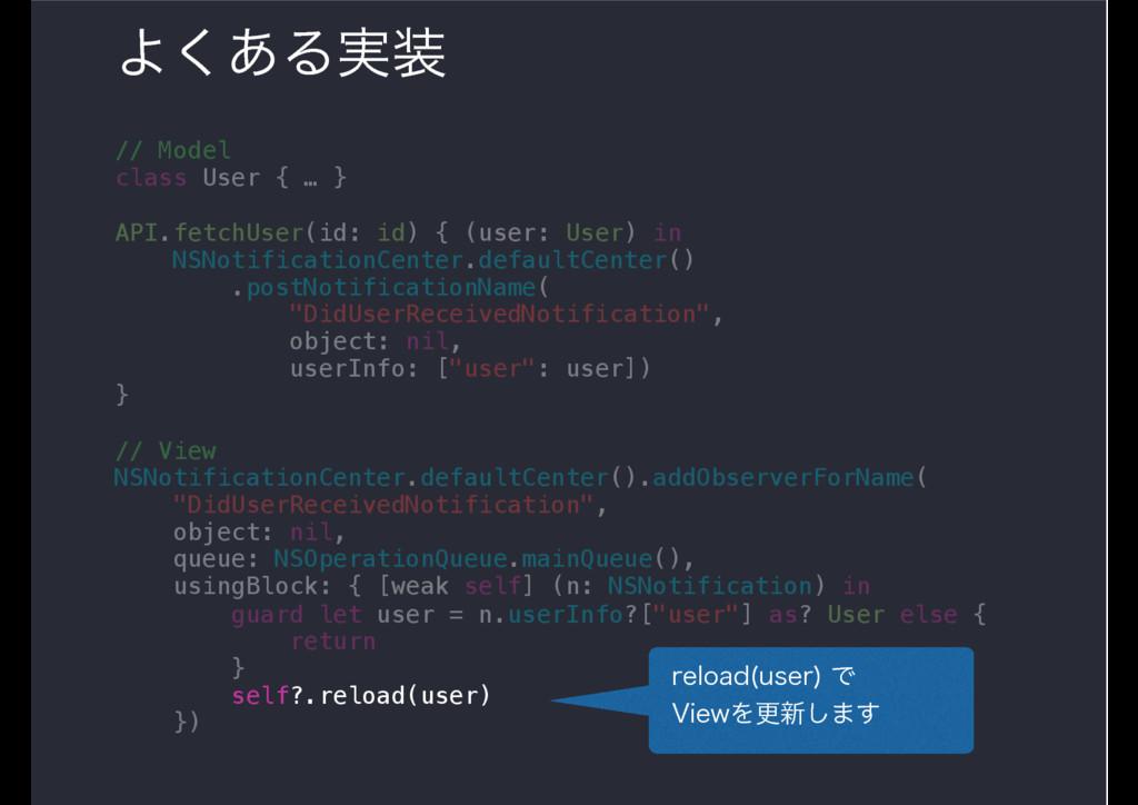 Α͋͘Δ࣮ // Model class User { … } API.fetchUser(...