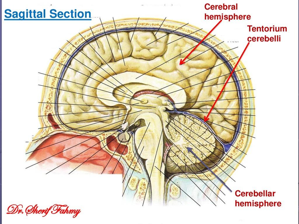 Cerebral hemisphere Cerebellar hemisphere Tento...