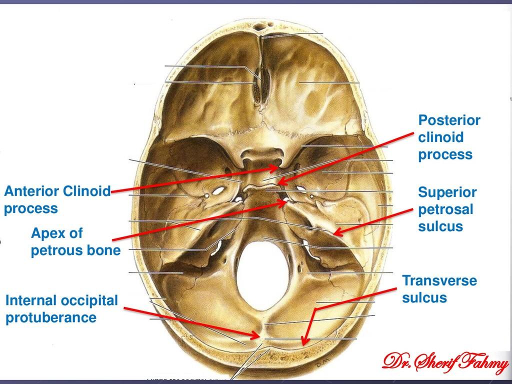 Anterior Clinoid process Posterior clinoid proc...
