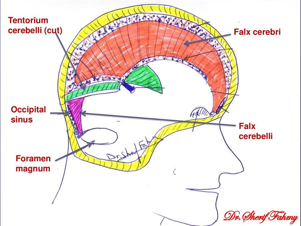 Falx cerebri Tentorium cerebelli (cut) Falx cer...