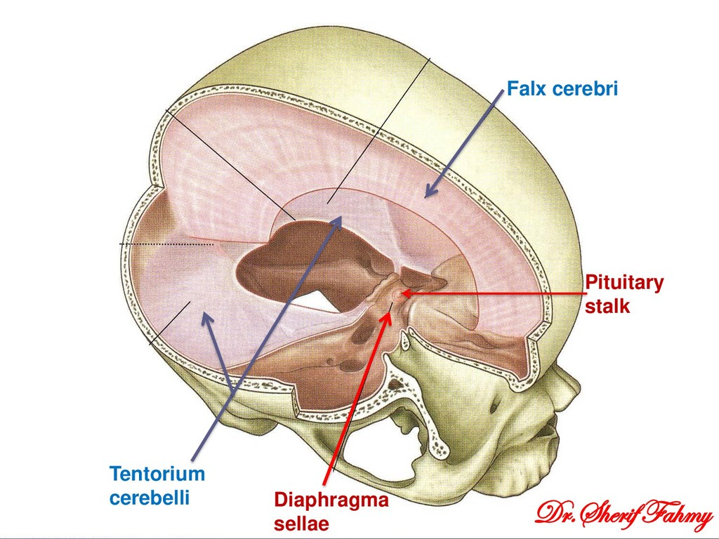 Falx cerebri Tentorium cerebelli Diaphragma sel...