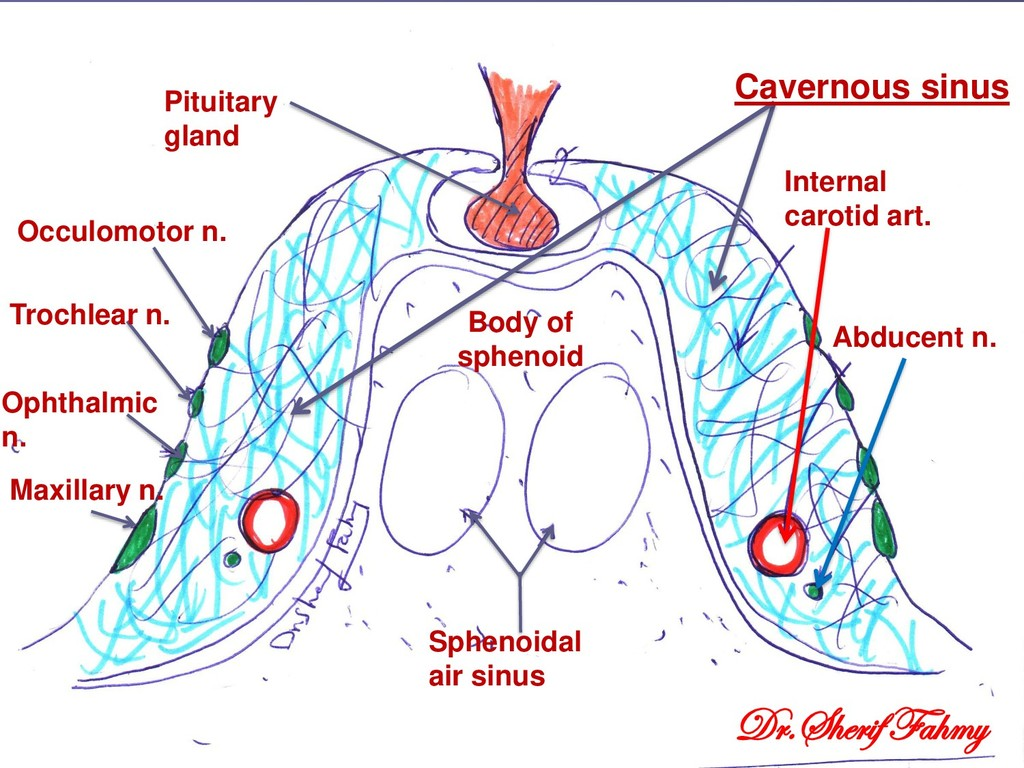 Pituitary gland Body of sphenoid Sphenoidal air...
