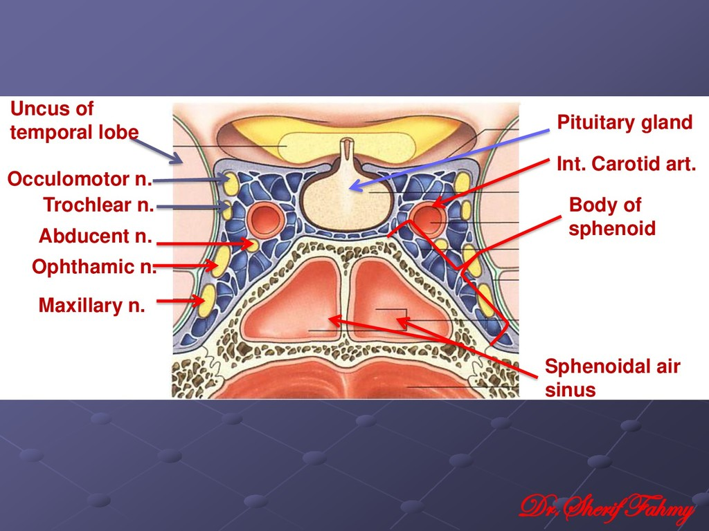 Pituitary gland Body of sphenoid Int. Carotid a...