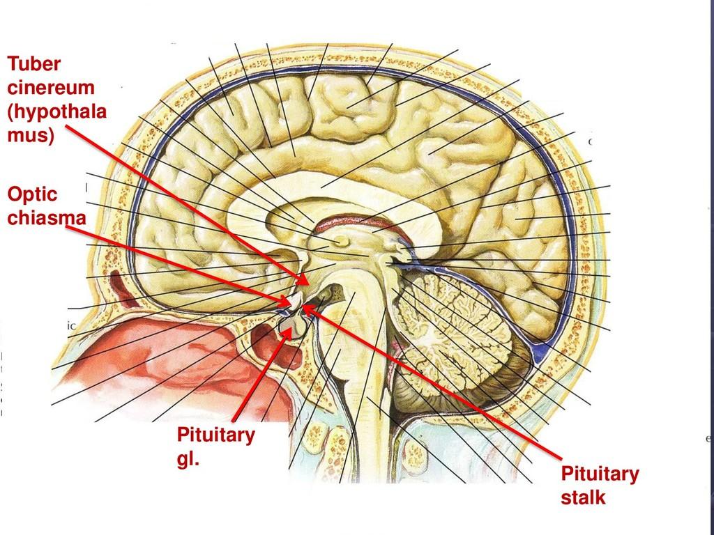 Pituitary gl. Pituitary stalk Tuber cinereum (h...