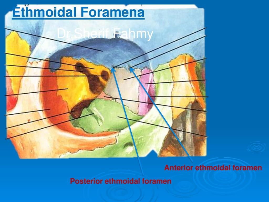 Posterior ethmoidal foramen Anterior ethmoidal ...
