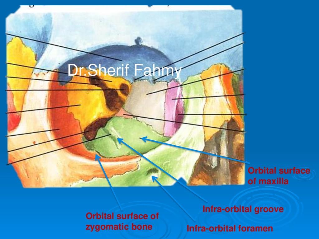 Orbital surface of maxilla Infra-orbital groove...