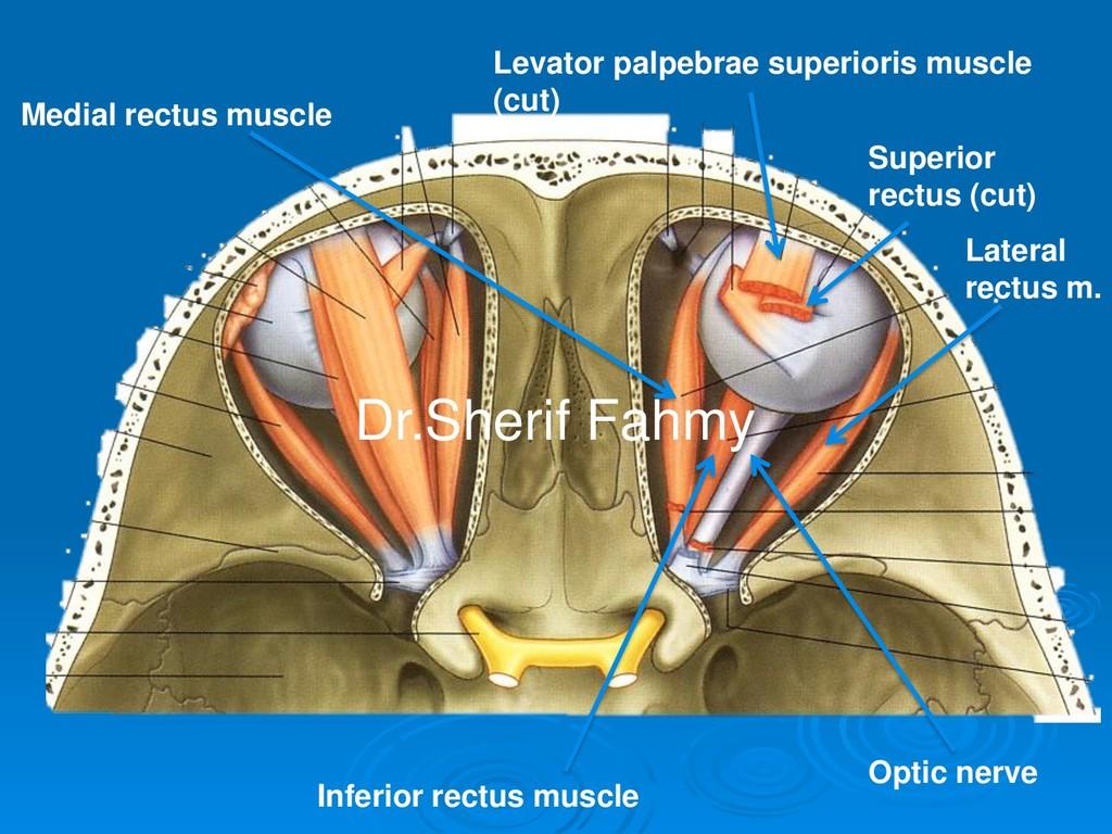 Levator palpebrae superioris muscle (cut) Super...