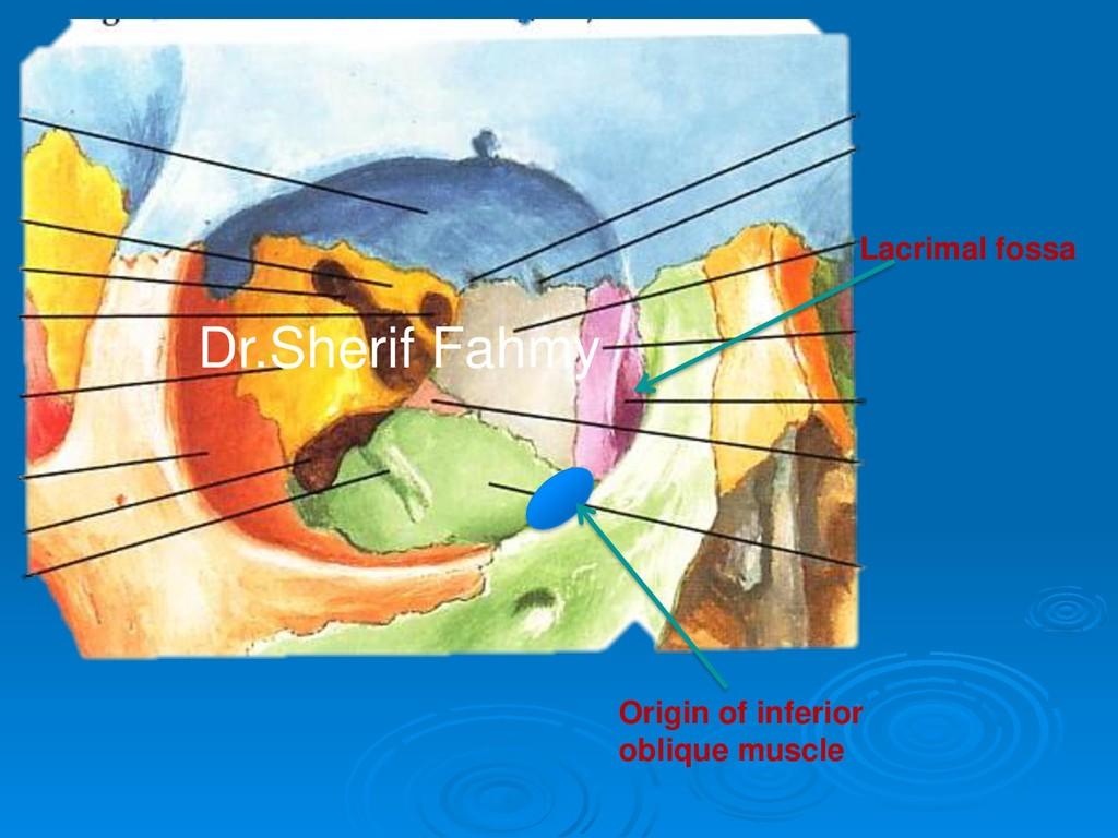Lacrimal fossa Origin of inferior oblique muscl...