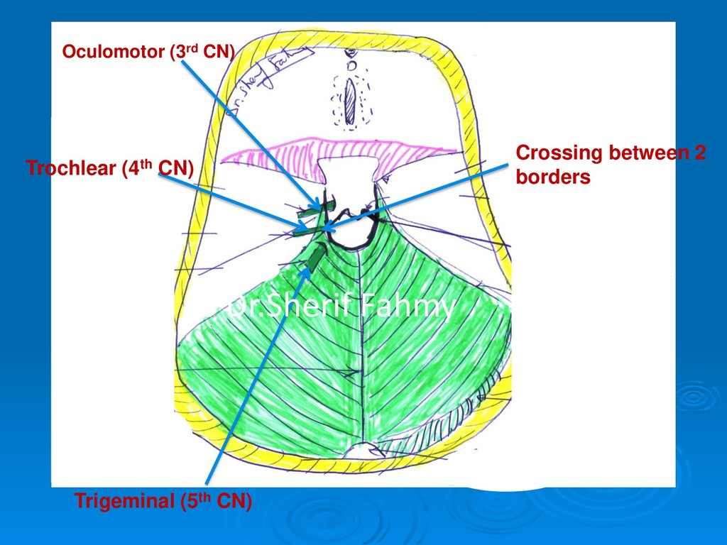 Crossing between 2 borders Oculomotor (3rd CN) ...