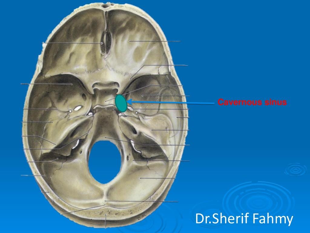 Cavernous sinus Dr.Sherif Fahmy