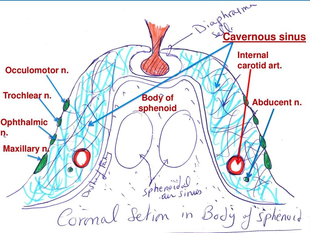 Body of sphenoid Occulomotor n. Trochlear n. Op...
