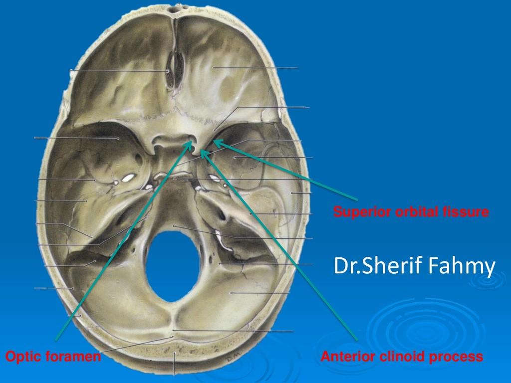 Anterior clinoid process Optic foramen Superior...