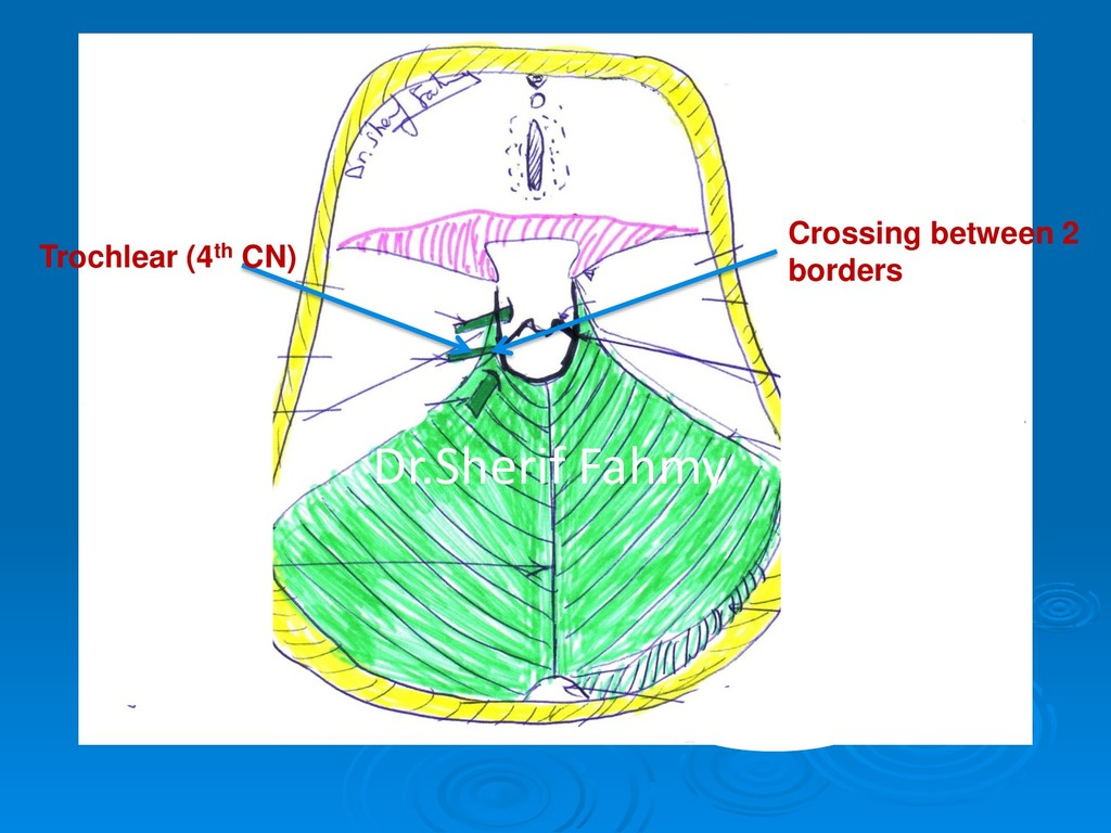 Crossing between 2 borders Trochlear (4th CN) D...