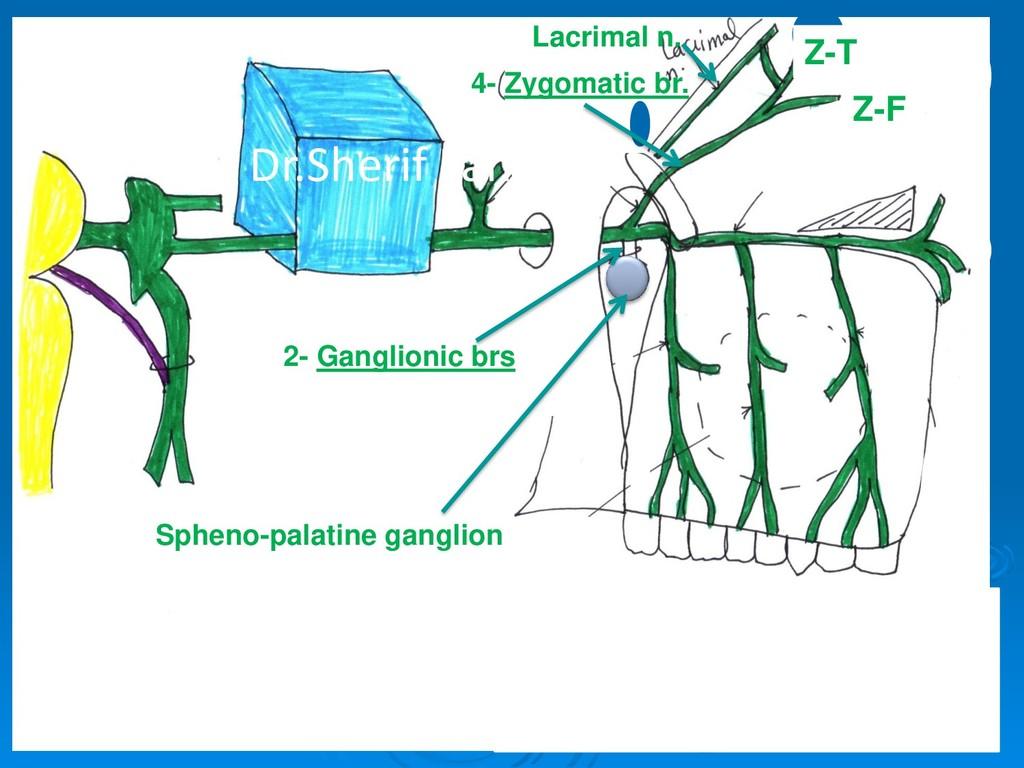 2- Ganglionic brs 4- Zygomatic br. Z-F Z-T Lacr...