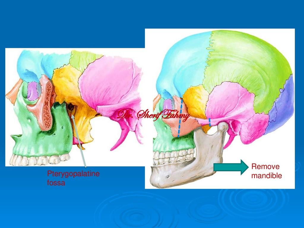 Pterygopalatine fossa Remove mandible Dr. Sheri...