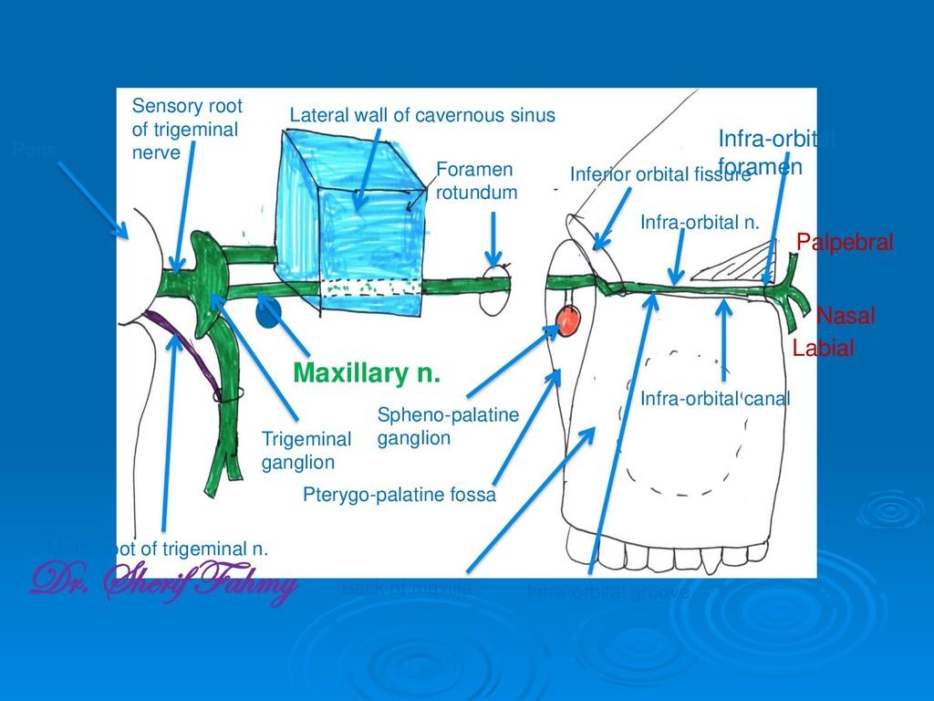 Pons Sensory root of trigeminal nerve Motor roo...