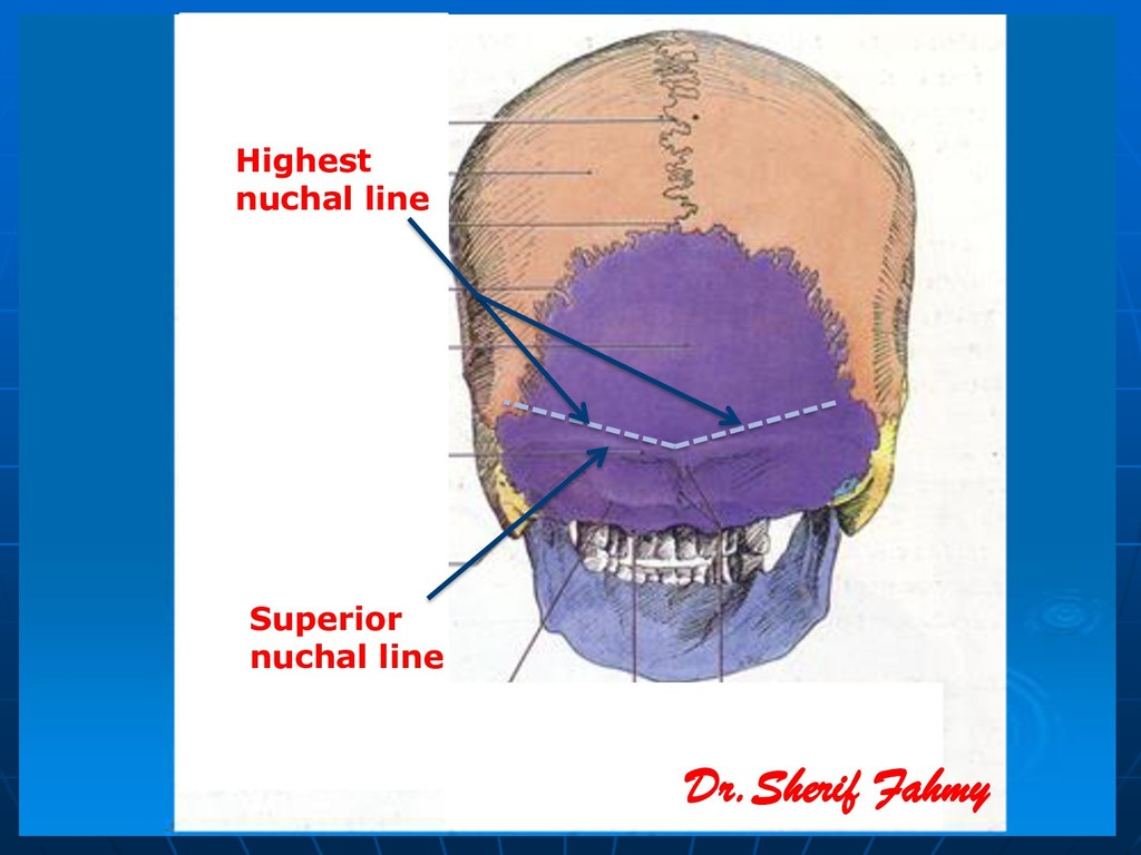 Superior nuchal line Dr.Sherif Fahmy Highest nu...