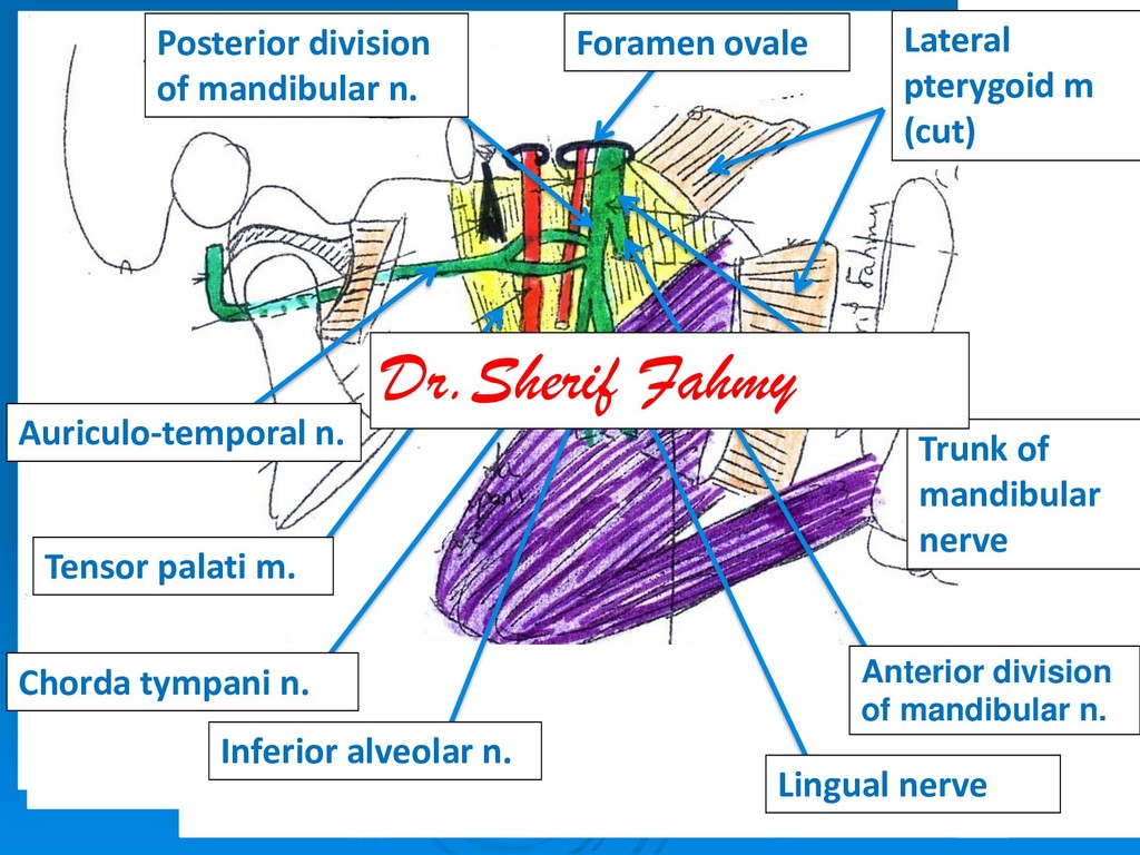 Foramen ovale Lateral pterygoid m (cut) Tensor ...