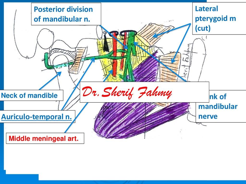 Lateral pterygoid m (cut) Trunk of mandibular n...