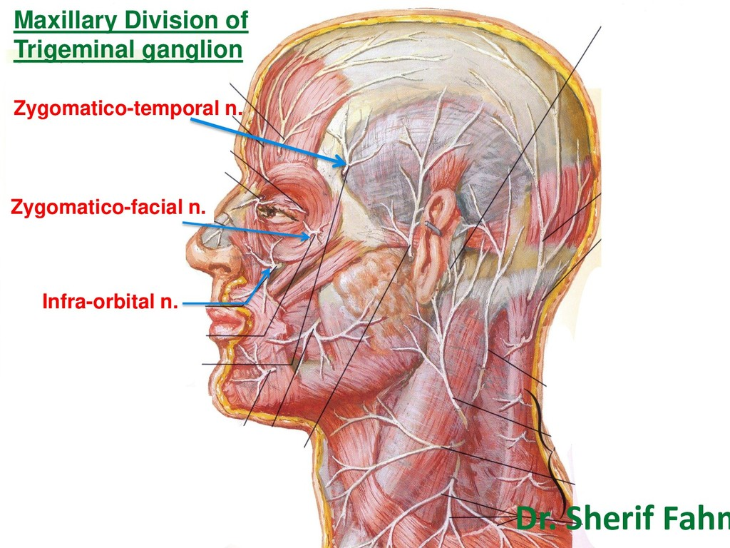 Maxillary Division of Trigeminal ganglion Infra...