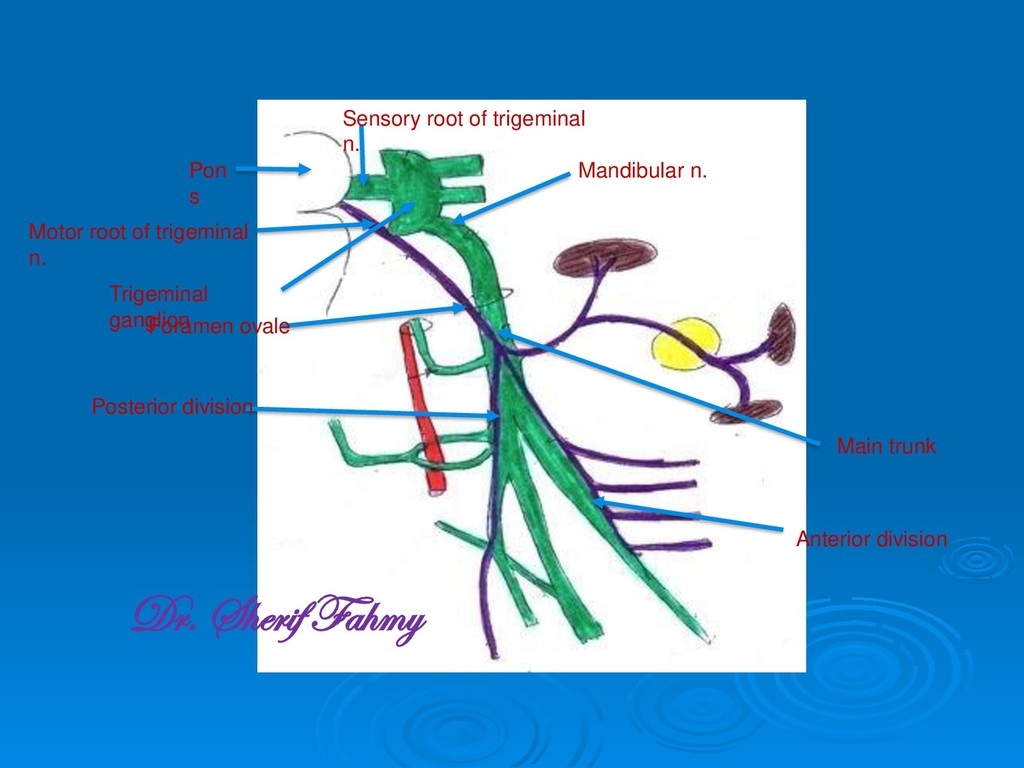 Pon s Sensory root of trigeminal n. Motor root ...