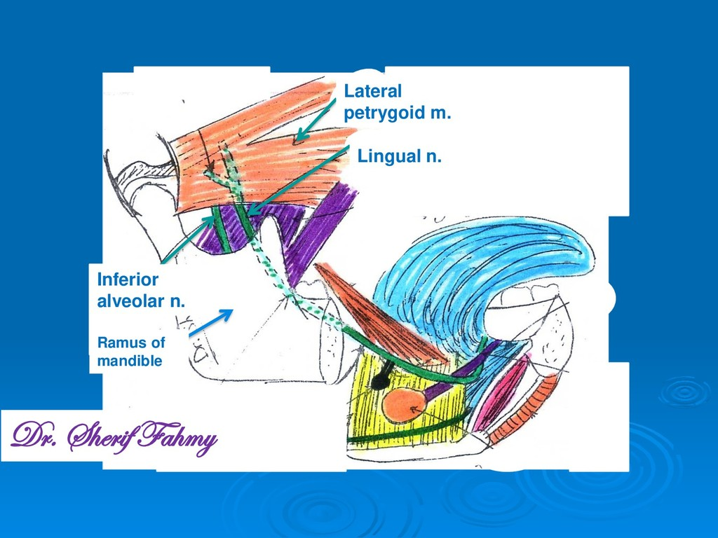 Lateral petrygoid m. Inferior alveolar n. Lingu...