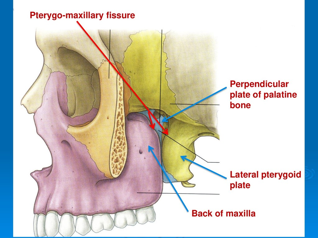Back of maxilla Lateral pterygoid plate Perpend...