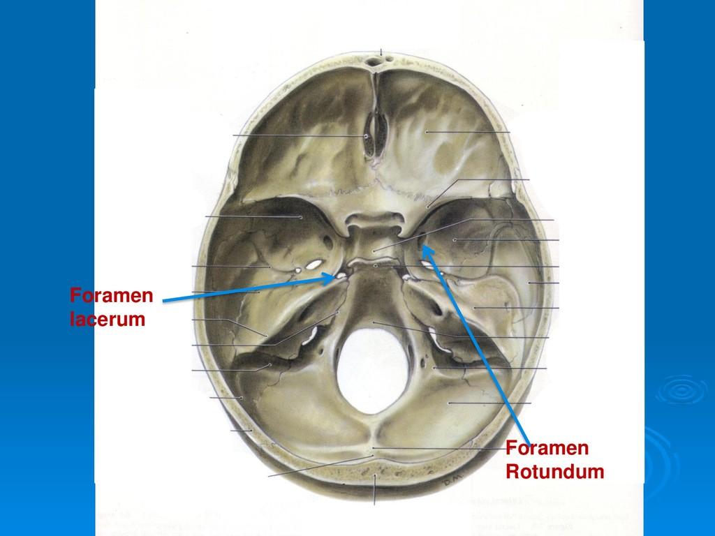 Foramen Rotundum Foramen lacerum