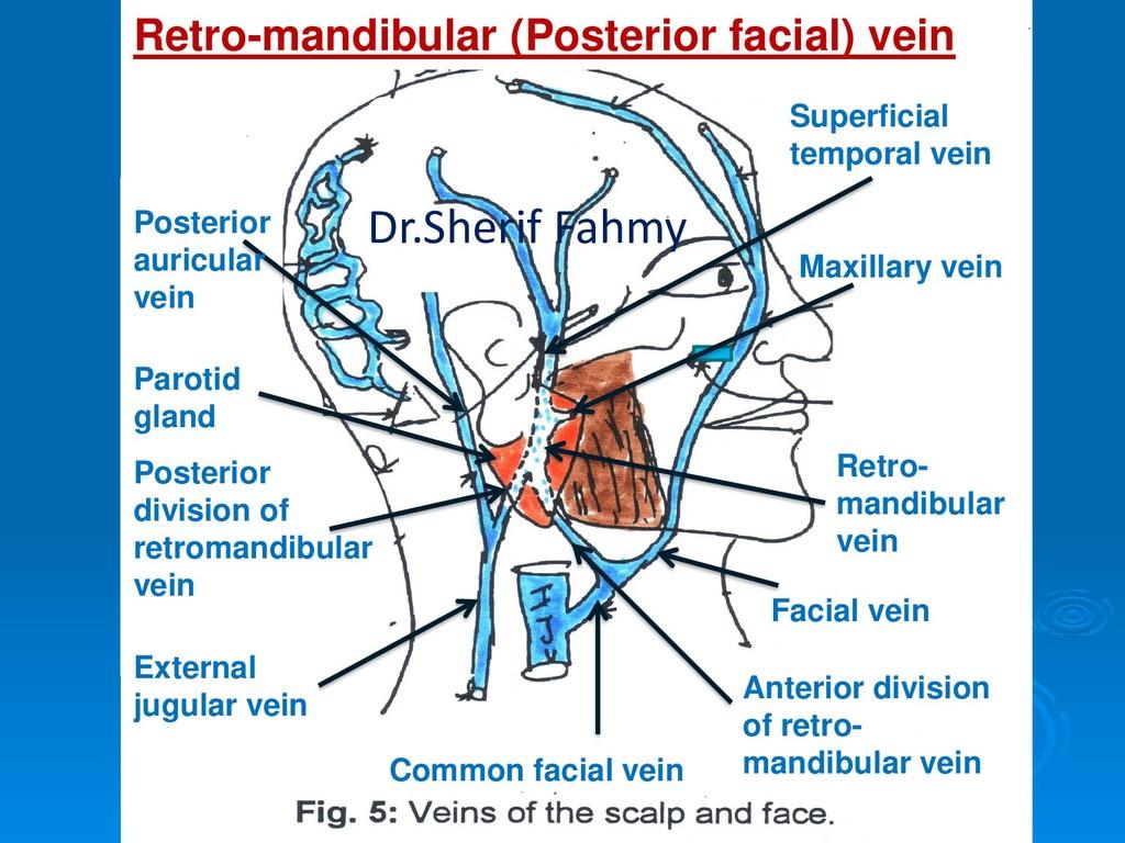 Retro-mandibular (Posterior facial) vein Retro-...