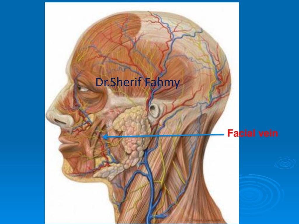 Facial vein Dr.Sherif Fahmy