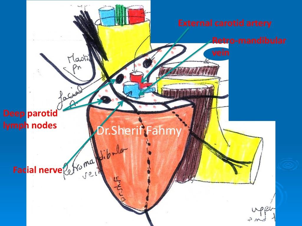 Facial nerve Retro-mandibular vein External car...