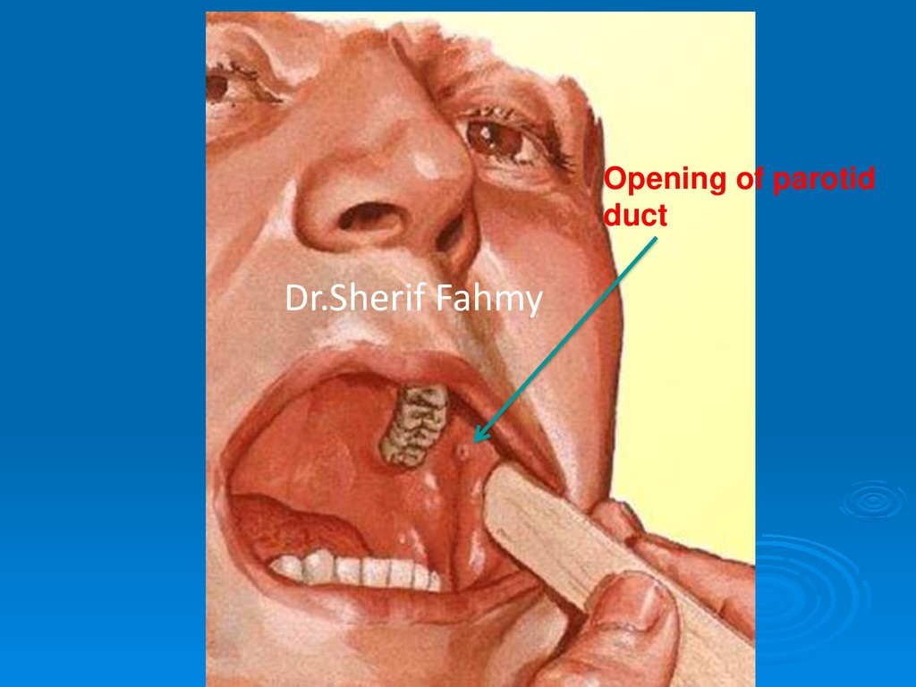 Opening of parotid duct Dr.Sherif Fahmy