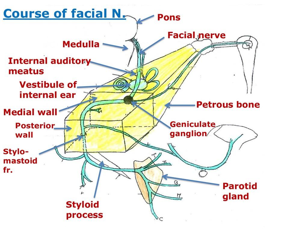 Pons Medulla Facial nerve Petrous bone Internal...