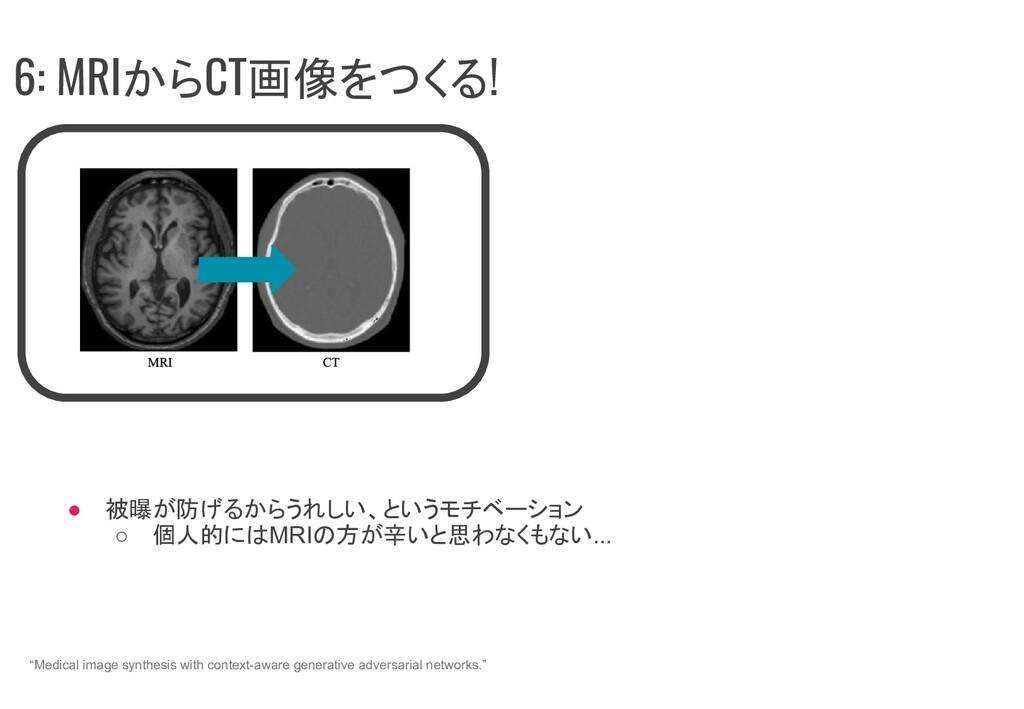 ● 被曝が防げるからうれしい、というモチベーション ○ 個人的にはMRIの方が辛いと思わなくも...
