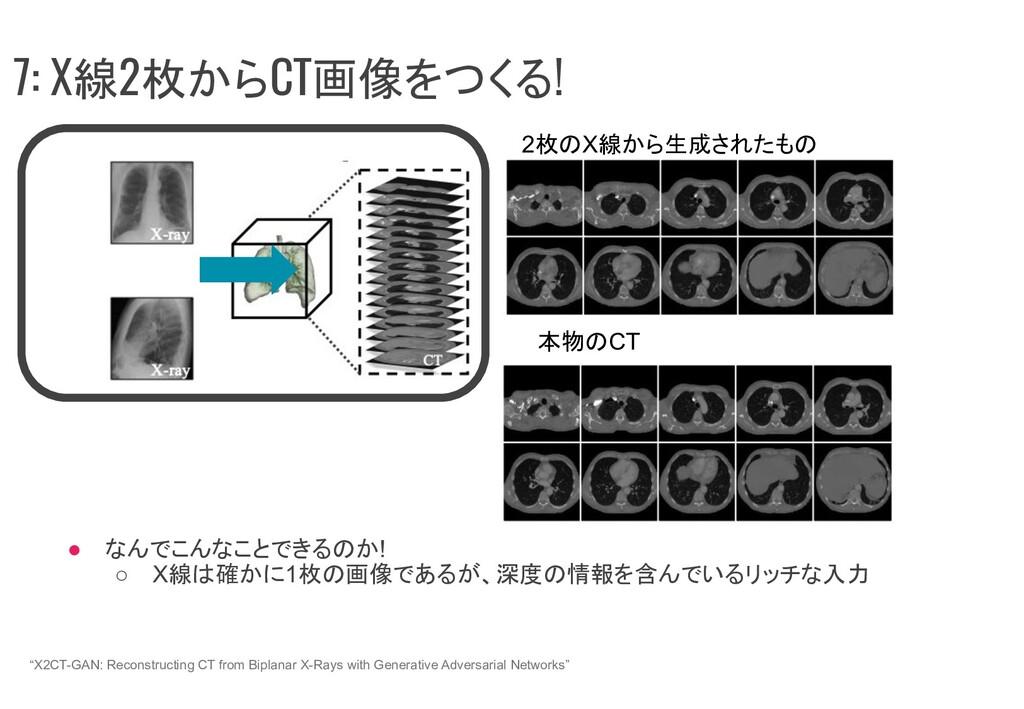 ● なんでこんなことできるのか! ○ X線は確かに1枚の画像であるが、深度の情報を含んでいるリ...