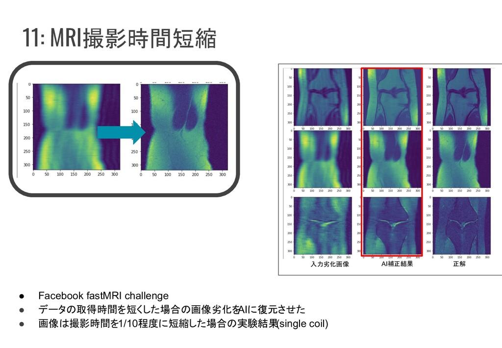 11: MRI撮影時間短縮 ● Facebook fastMRI challenge ● デー...