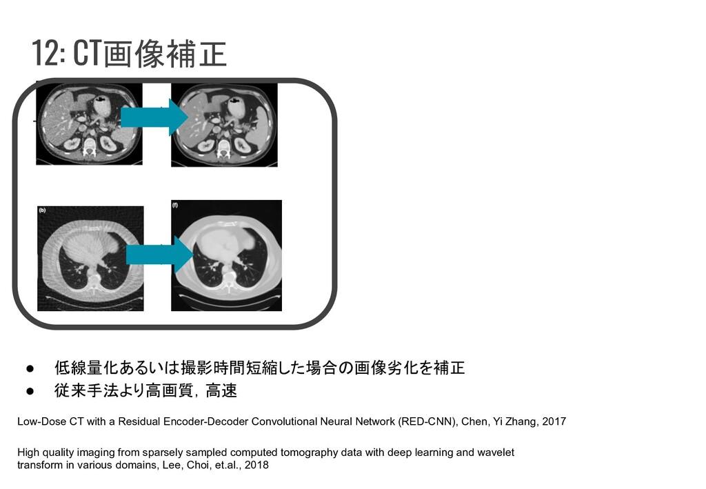 12: CT画像補正 ● 低線量化あるいは撮影時間短縮した場合の画像劣化を補正 ● 従来手法よ...
