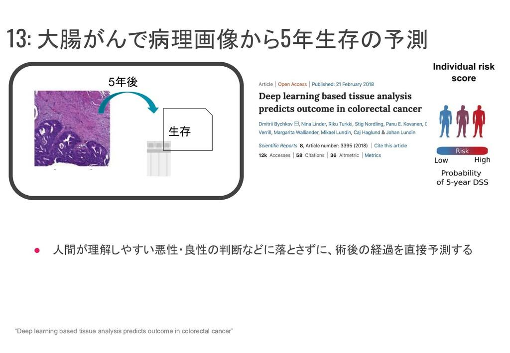 13: 大腸がんで病理画像から5年生存の予測 ● 人間が理解しやすい悪性・良性の判断などに落と...