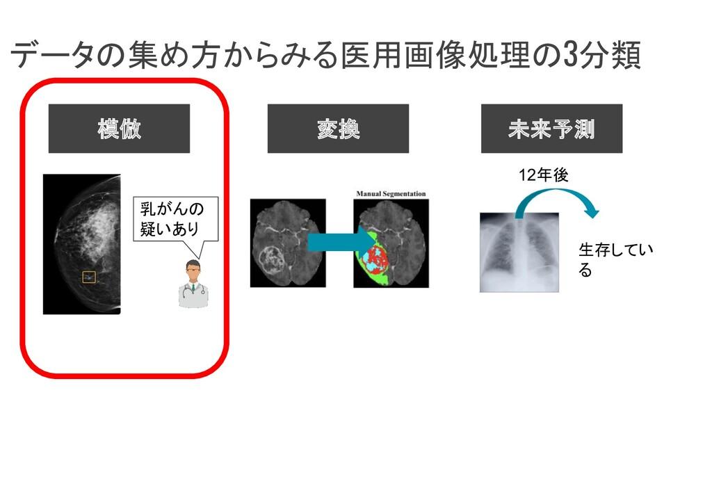 データの集め方からみる医用画像処理の3分類 模倣 変換 未来予測 12年後 生存してい る 乳...