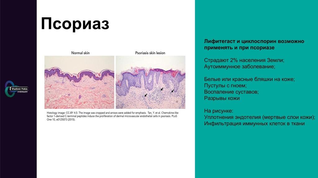 Псориаз Лифитегаст и циклоспорин возможно приме...