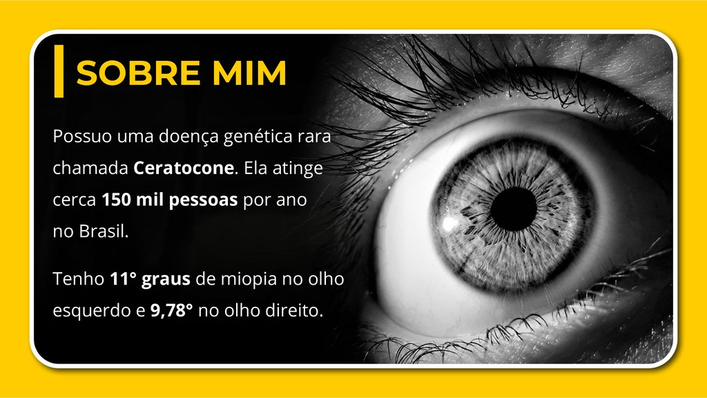 Possuo uma doença genética rara chamada Ceratoc...