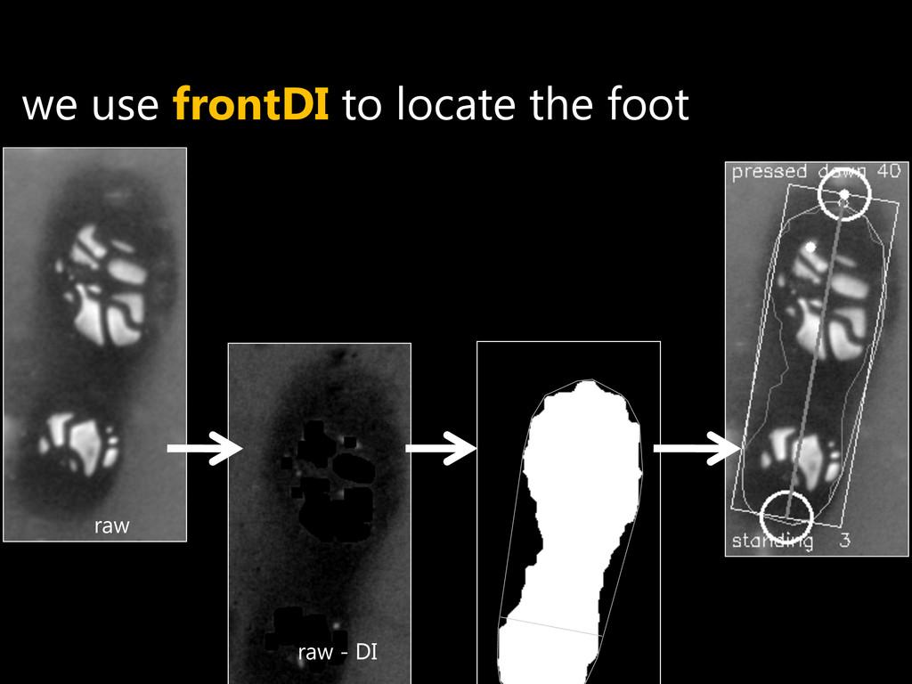 raw - DI raw we use frontDI to locate the foot