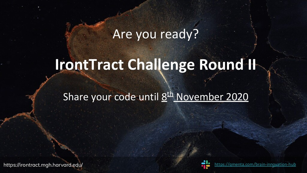 Are you ready? IrontTract Challenge Round II Sh...