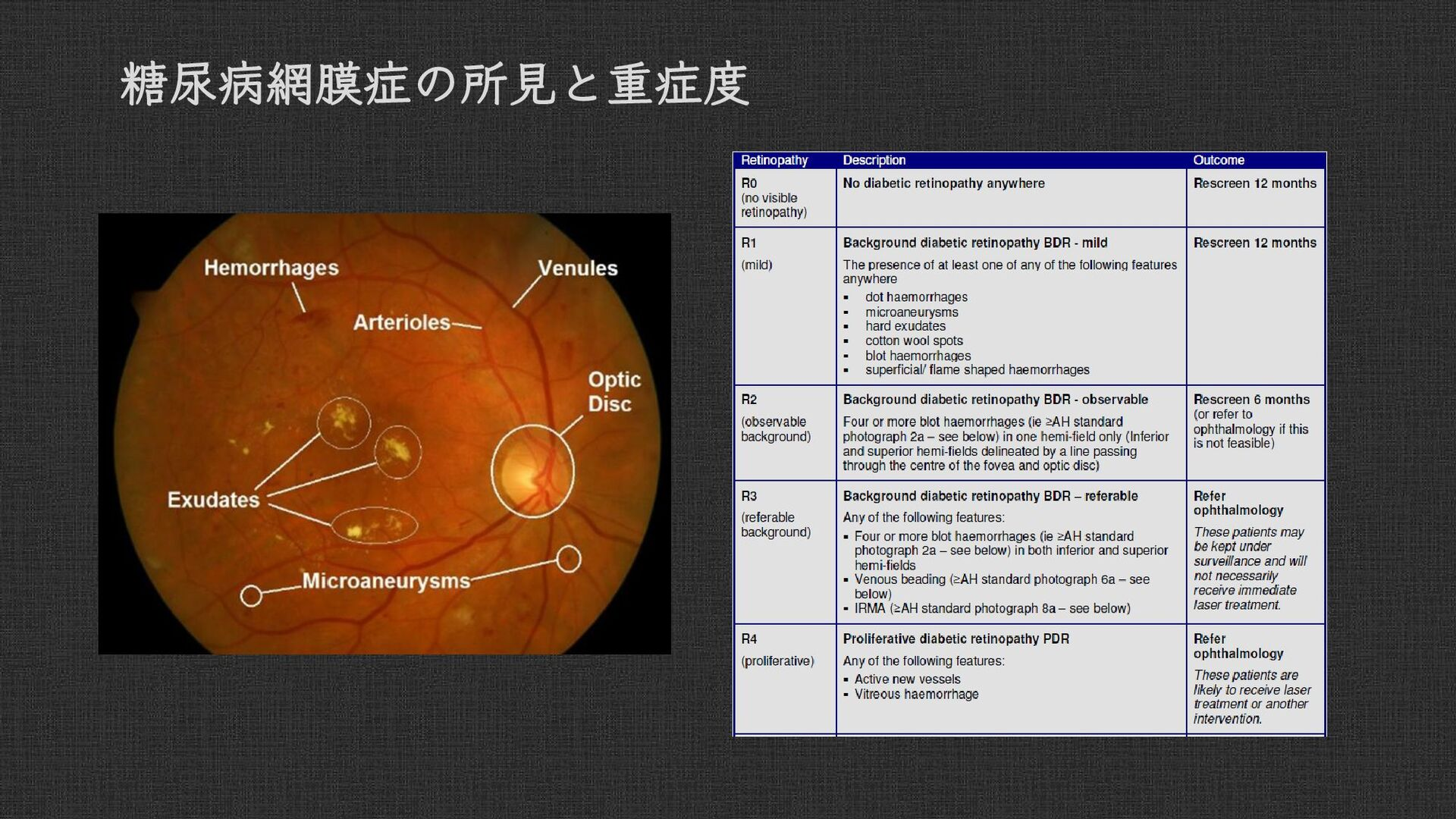 Localized Various Findings of Diabetic Retinopa...