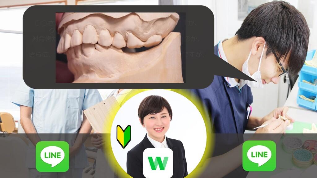 ○○さんの左下67のパーシャルデンチャーなのですが、 クリアランスがないので人工歯が入りません...