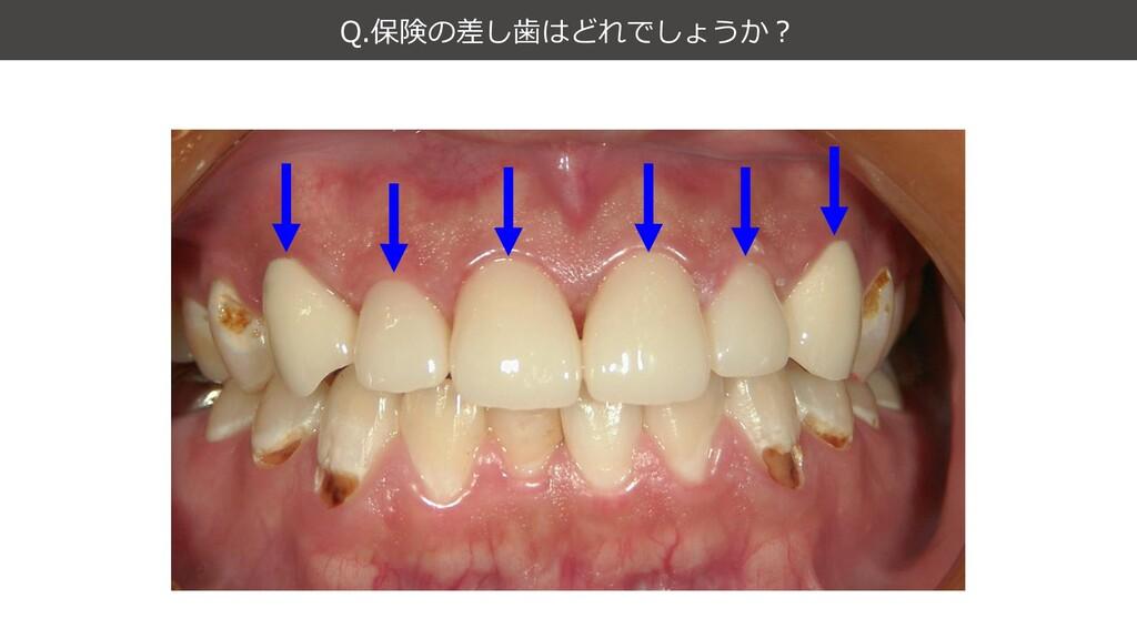 Q.保険の差し歯はどれでしょうか?